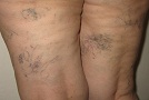 Varixy - kŕčové žily