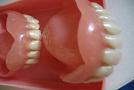 Zuby, zúbky, zubčeky