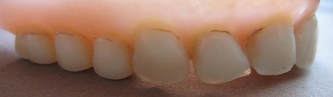 Preventívna prehliadka a dentálna hygiena
