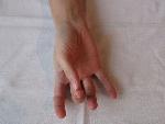 7.pohyb palec-prostredník