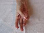 9.pohyb palec-malíček